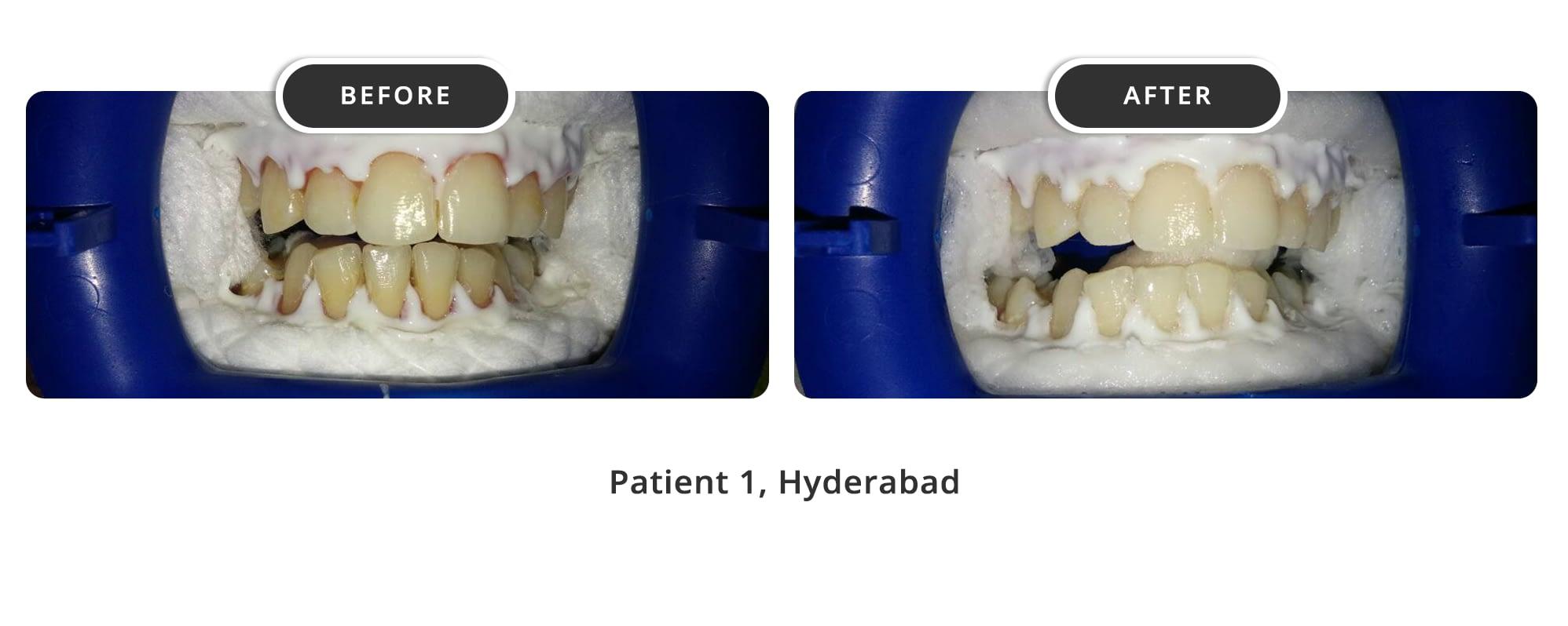 Teeth Whitening 1