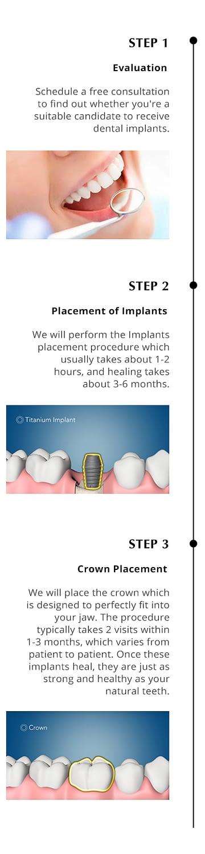 Implants 123