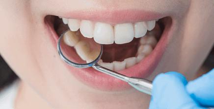 braces 1