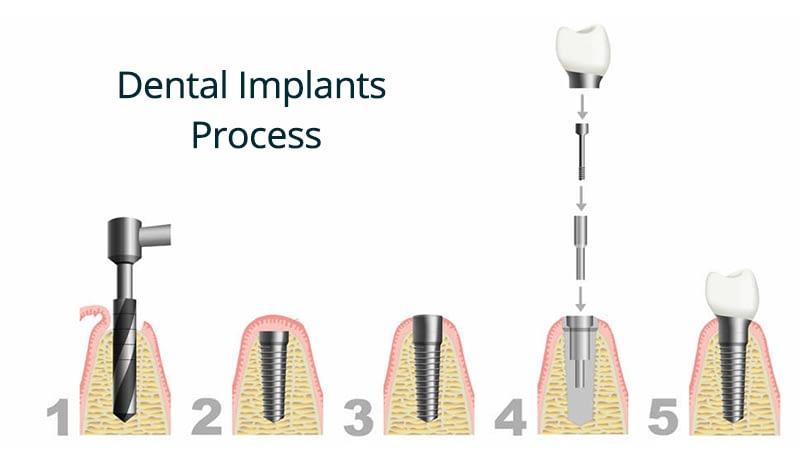 Implants 11