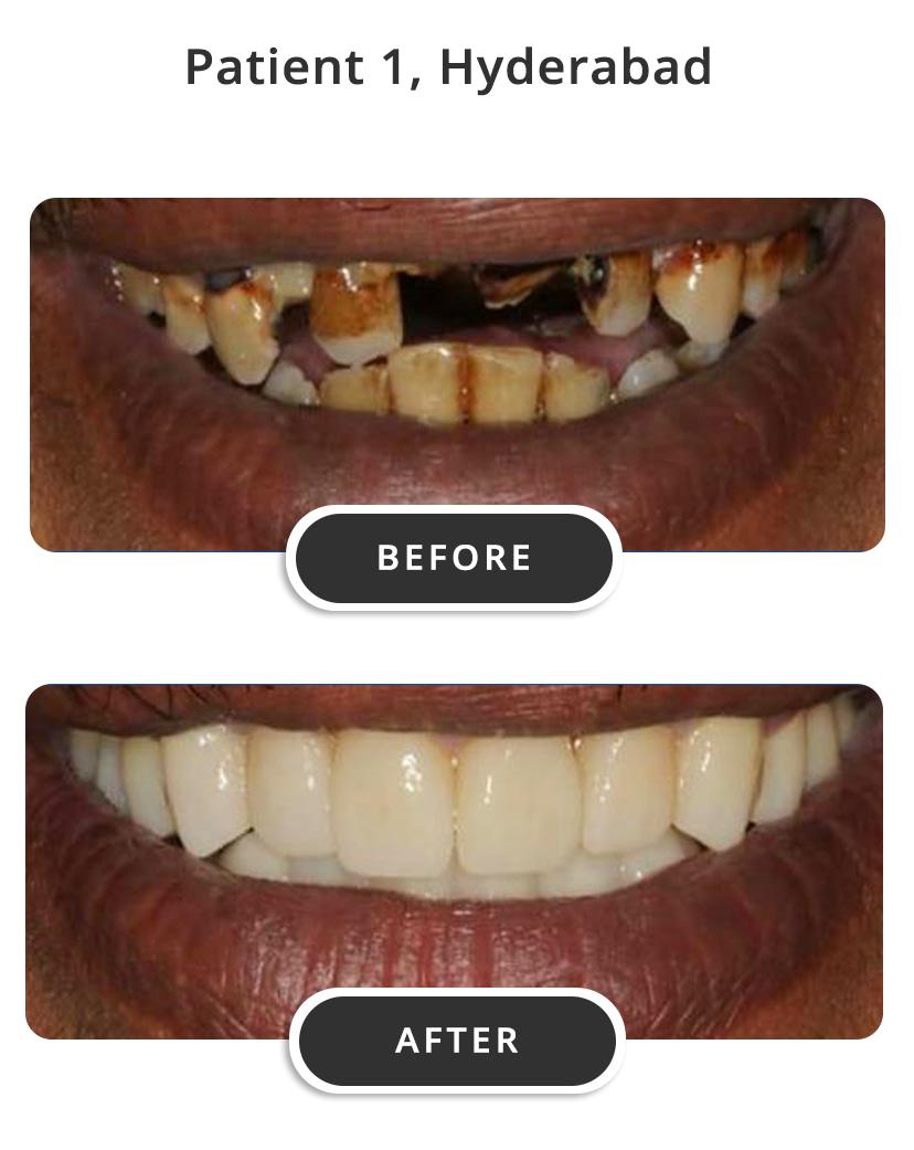 Dental Implants M1
