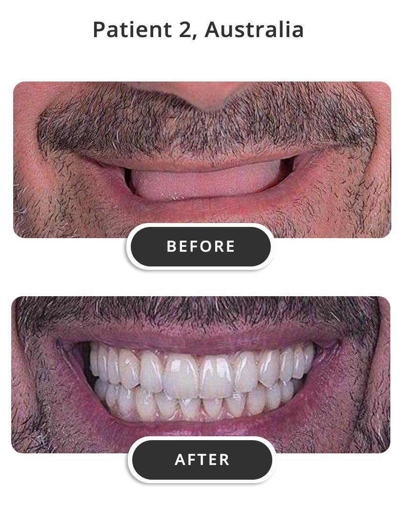 Dental Implants M2