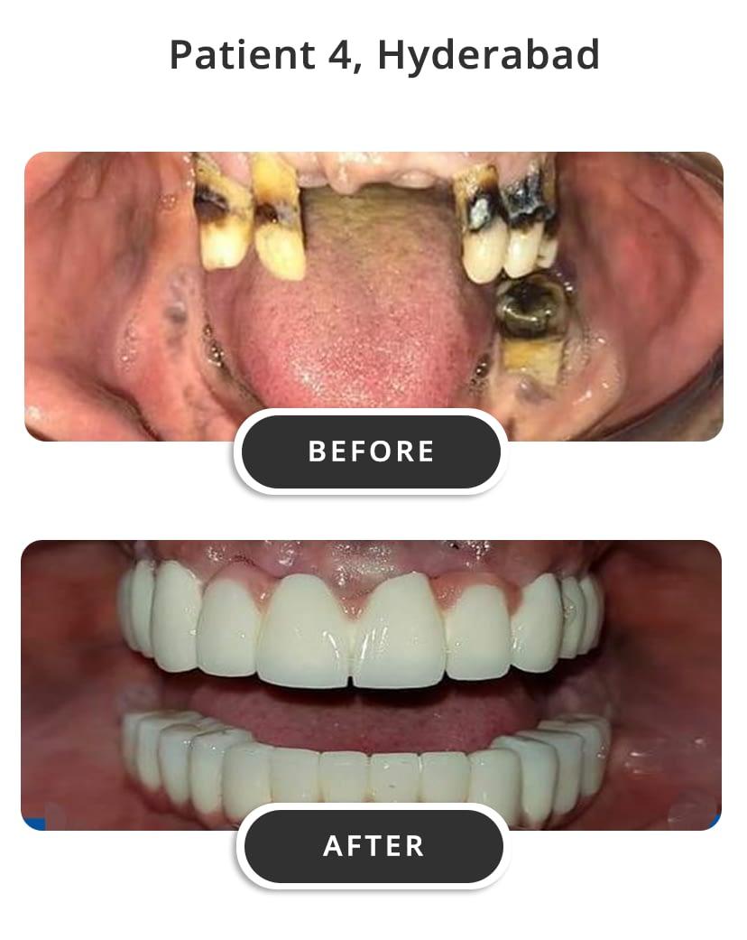 Dental Implants M4