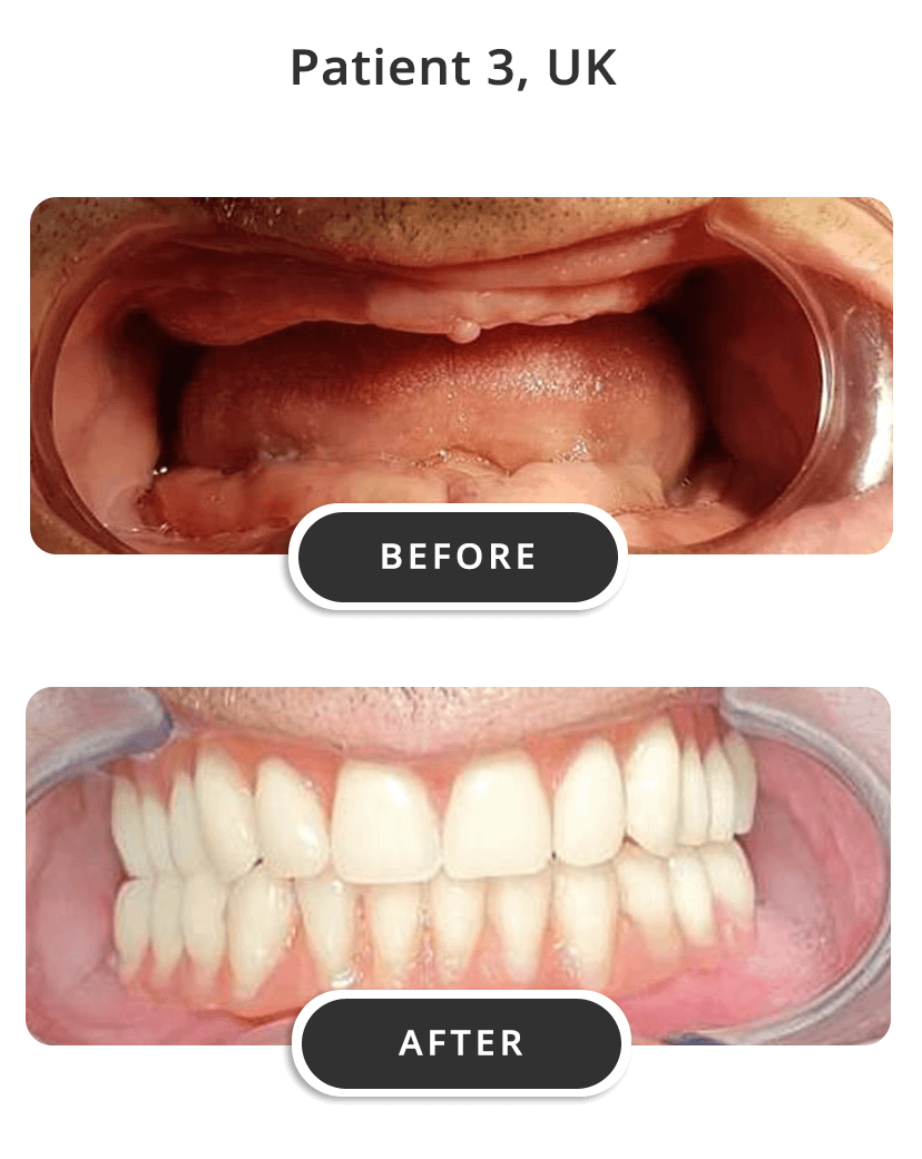 Dental Implants M3
